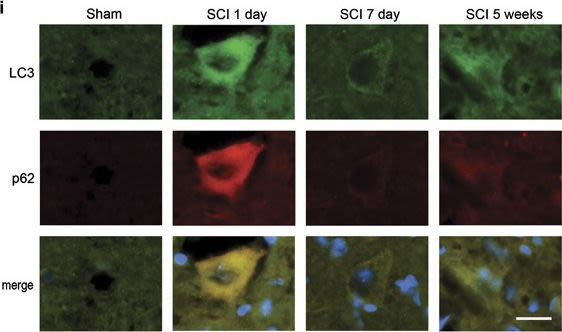 Disrupted autophagy after spinal cord injury is associated with ER stress and neuronal cell death.