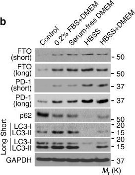 m6A mRNA demethylase FTO regulates melanoma tumorigenicity and response to anti-PD-1 blockade.