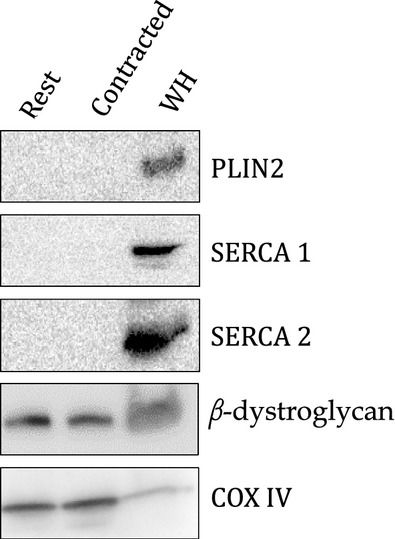 Higher PLIN5 but not PLIN3 content in isolated skeletal muscle mitochondria following acute in vivo contraction in rat hindlimb.