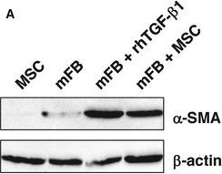 MSCs rescue impaired wound healing in a murine LAD1 model by adaptive responses to low TGF-β1 levels.