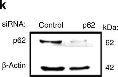 Selective degradation of PU.1 during autophagy represses the differentiation and antitumour activity of TH9 cells.