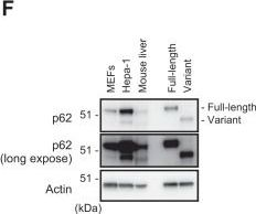 Negative Regulation of the Keap1-Nrf2 Pathway by a p62/Sqstm1 Splicing Variant.