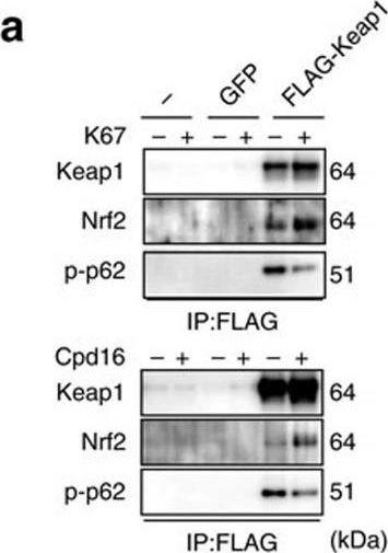 p62/Sqstm1 promotes malignancy of HCV-positive hepatocellular carcinoma through Nrf2-dependent metabolic reprogramming.