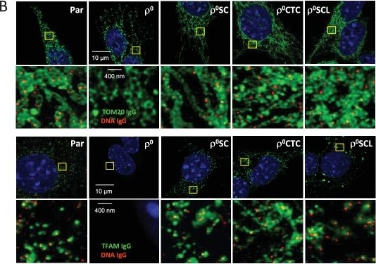 Horizontal transfer of whole mitochondria restores tumorigenic potential in mitochondrial DNA-deficient cancer cells.