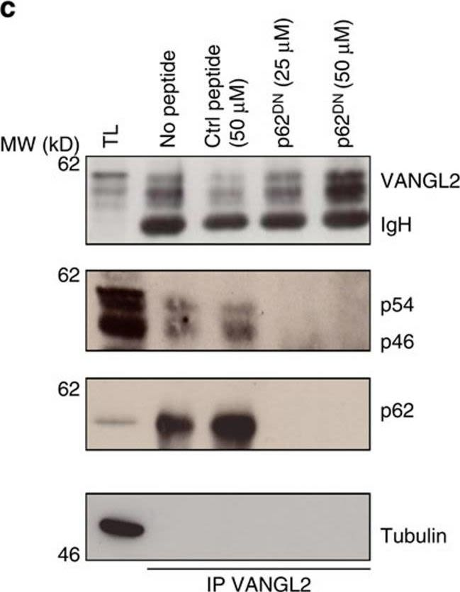 Identification of p62/SQSTM1 as a component of non-canonical Wnt VANGL2-JNK signalling in breast cancer.