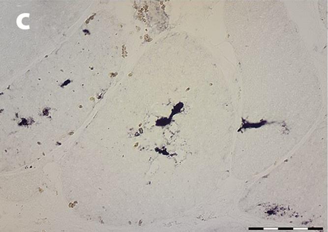 Myoglobinopathy is an adult-onset autosomal dominant myopathy with characteristic sarcoplasmic inclusions.
