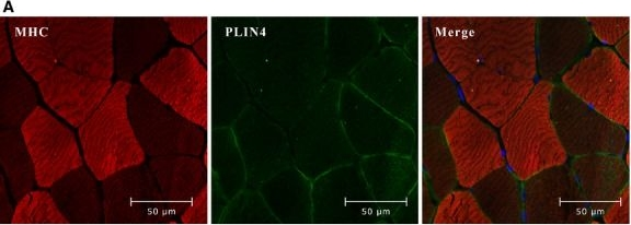 Perilipin 4 in human skeletal muscle: localization and effect of physical activity.