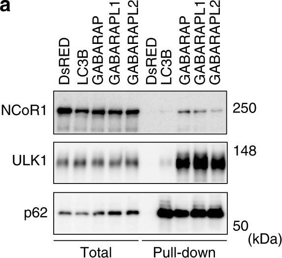 Autophagy regulates lipid metabolism through selective turnover of NCoR1.