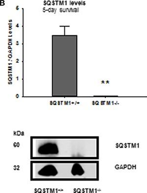 Sequestosome 1 Deficiency Delays, but Does Not Prevent Brain Damage Formation Following Acute Brain Injury in Adult Mice.
