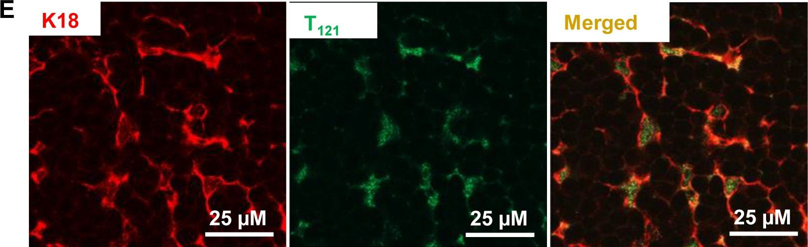 RB inactivation in keratin 18 positive thymic epithelial cells promotes non-cell autonomous T cell hyperproliferation in genetically engineered mice.