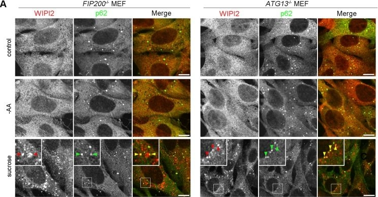 Hyperosmotic Stress Induces Unconventional Autophagy Independent of the Ulk1 Complex.